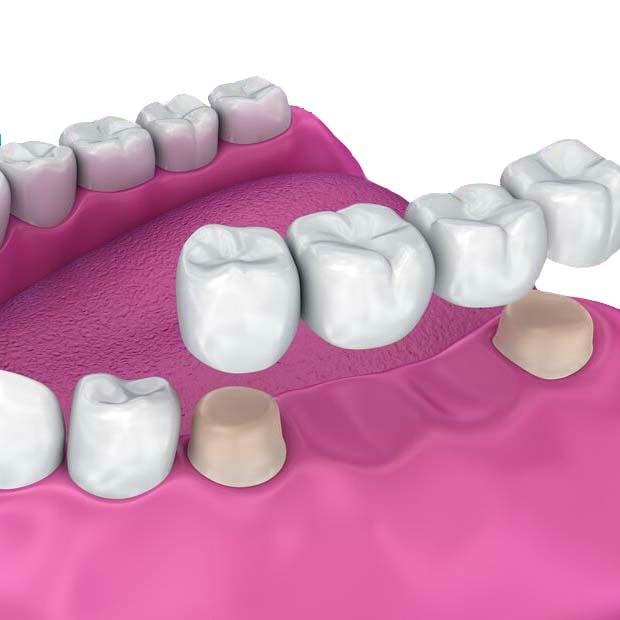 Exceptional-dental-care-359-Dental-Orthodontics-What-bridges